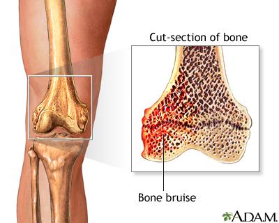 bone-bruise.jpg